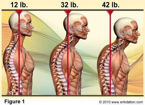 anterior-head-posture